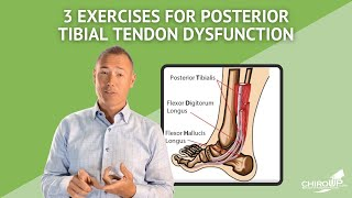 3 Exercises for Posterior Tibial Tendon Dysfunction