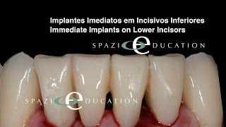 Implantes Imediatos em Incisivos Inferiores - Immediate Implants on Lower Incisors