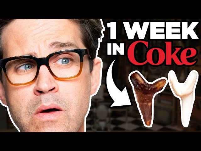 We Left Teeth In Coke For A Week (EXPERIMENT) thumbnail