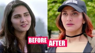 Vaani Kapoor Plastic Surgery Gone Wrong Horribly