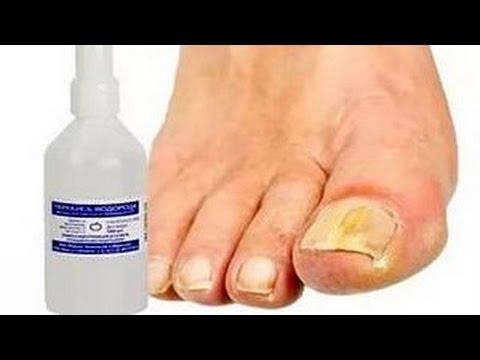 Как лечить грибок  ногтей перекисью водорода