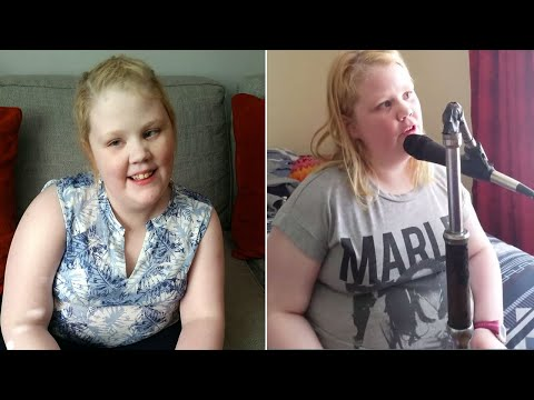 17-Year-Old With Autism Can Really Sing Ed Sheeran