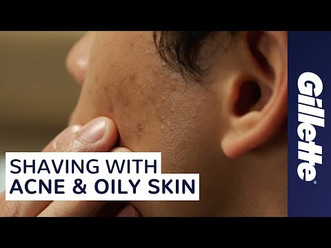 How to Avoid Shaving Irritation with Acne & Oily Skin | Gillette