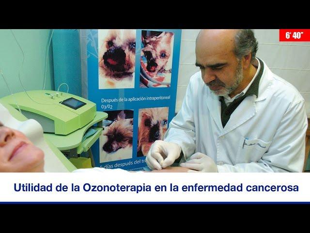 UTILIDAD DE LA OZONOTERAPIA EN LA ENFERMEDAD CANCEROSA