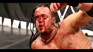 10 Worst Botches In WWE History