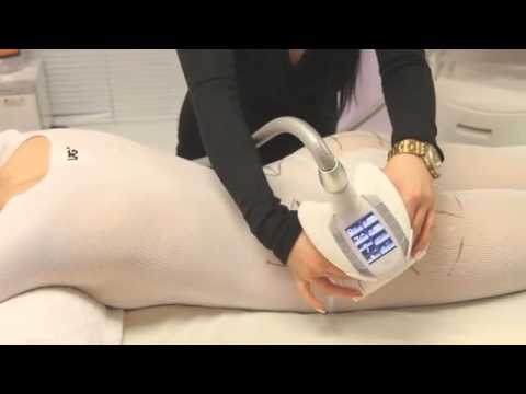 YoungYou Endermologie Weight Loss Center   Tarzana   Tarzana CA  Yelp