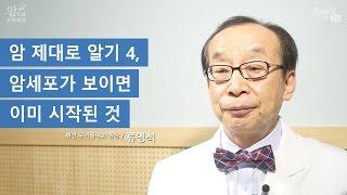 암 제대로 알기 4, 암세포가 보이면 전이는 이미 시작된 것 - 류영석 원장
