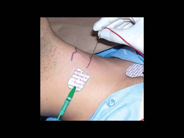 Eletromiografia aplicada