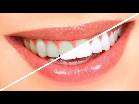 5 maneras para Blanquear los Dientes / How to make Teeth whiter