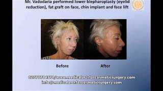 Lower blepharoplasty (eyelid reduction), fat graft on face, chin implant and facelift