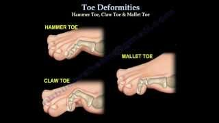 Toe Deformities Hammer, Claw & Mallet Toes - Everything You Need To Know - Dr. Nabil Ebraheim