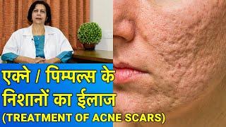 एक्ने / पिम्पल्स के गड्ढों का ईलाज || Acne Scar Treatment (In HINDI)