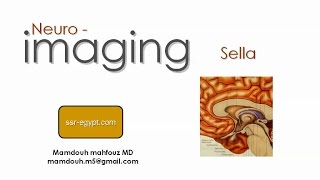 Imaging of Sella (Aug 2014) - Dr Mamdouh Mahfouz (In Arabic)