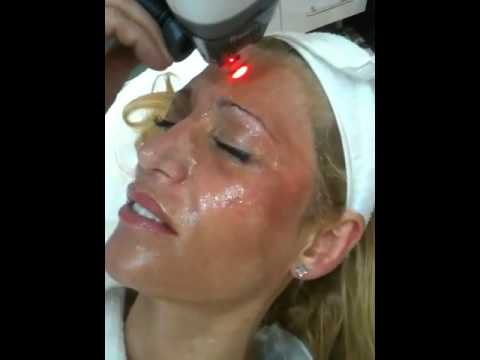 Acne Scarring Laser Skin Treatment Sydney CBD , Wahroonga, Chatswood, Parramatta