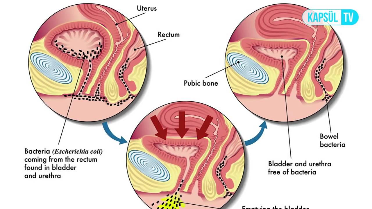 Кишечная палочка в моче схемы лечения