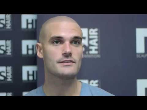 Scalp Micropigmentation Los Angeles - James's Propecia Hair Loss Story