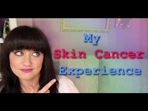 MY SKIN CANCER EXPERIENCE