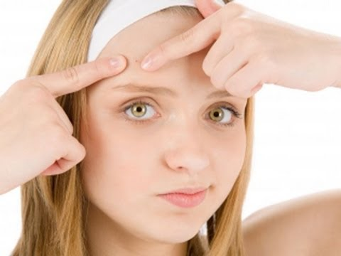 10 Super Easy And Effective Way to Get Rid Of Acne