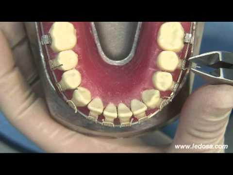 ORTOCERVERA / Ortodoncia: Stripping - Alineación
