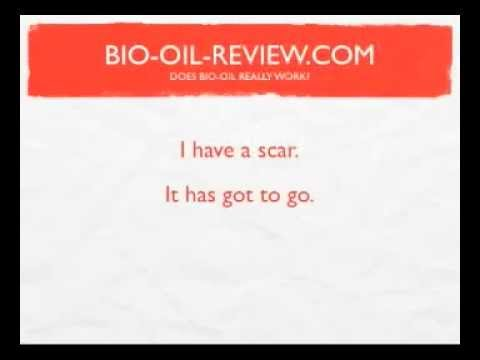 Bio Oil Review: Does Bio Oil Really Work?