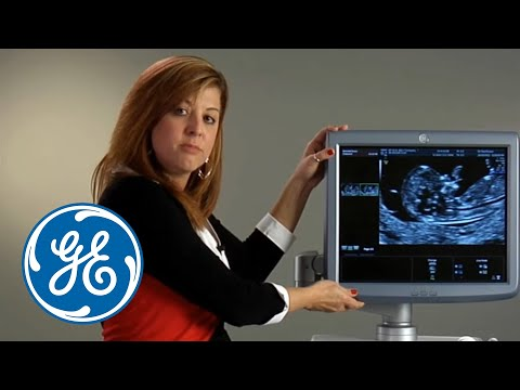 GE Healthcare Voluson E8 ultrasound demonstration