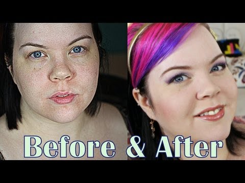 Cover Acne Scars & Rough Texture!!