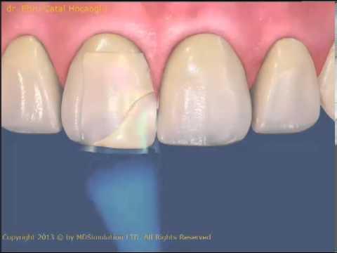Kırık dişlerin dolgularla düzeltilmesi