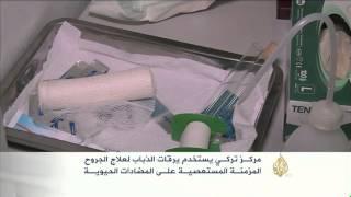 مركز لعلاج الجروح المزمنة المستعصية بيرقات الذباب