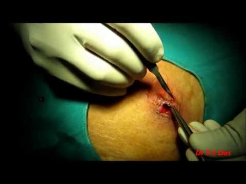 Abdominal Wall Abscess Drainage In An Elderly Diabetic Lady