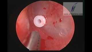Endoscopic Ventilation Tube Insertion VideoMp4Mp3.Com
