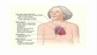 women's heart attack symtoms different from men's
