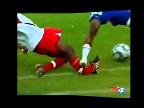 Quebraduras en el futbol