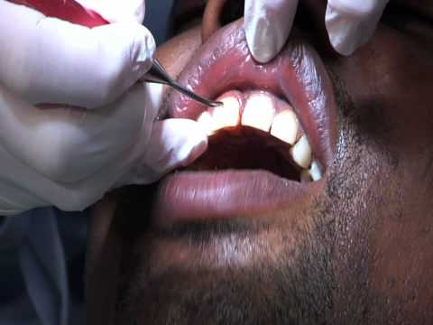 Laser dental surgery.mov