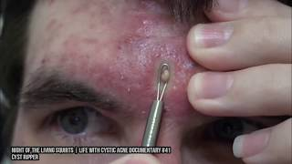 Hard Pops! What are Blackheads, Pimples & Epidermoid Cysts?