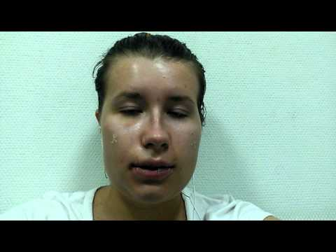 3 дня. Самые тяжелые. Челюстно-лицевая хирургия.