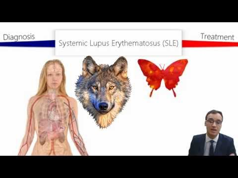 Systemic Lupus Erythematosus (SLE) thumbnail