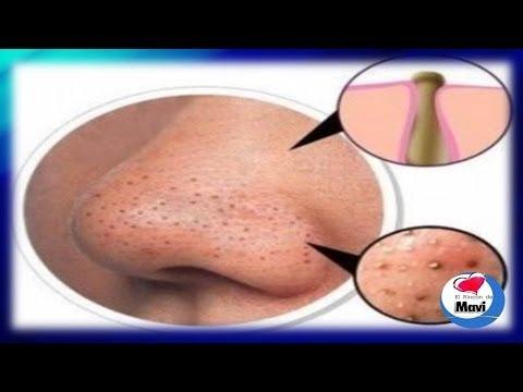 7 Mascarillas caseras para la cara puntos negros o espinillas - Tratamientos caseros para el rostro
