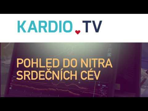 Kardio TV