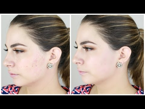 Face Makeup for Acne Scarring    Dermablend Review