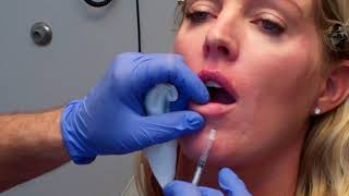 The Micro-Injection Technique for Beautiful Lips