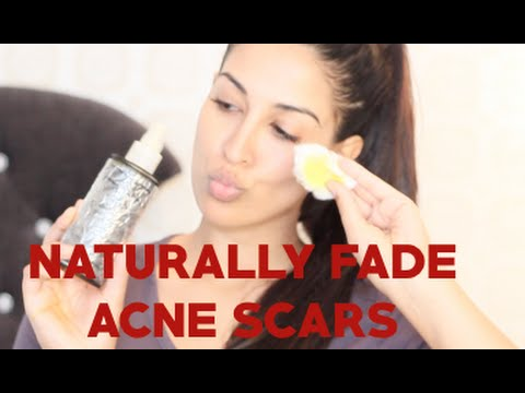 EASY! NATURALLY fade ACNE SCARS, DARK SPOTS, PIGMENT, FRECKLES, TAN! DIY!