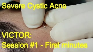 Severe Cystic Acne - Victor: First minutes (Session #1)