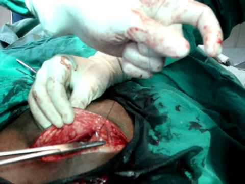 C.section with tubectomy,LSCS with TL,drvahabkp