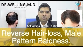 Reverse Hair-loss | Male Pattern Baldness | Whats DHT and Hairloss?