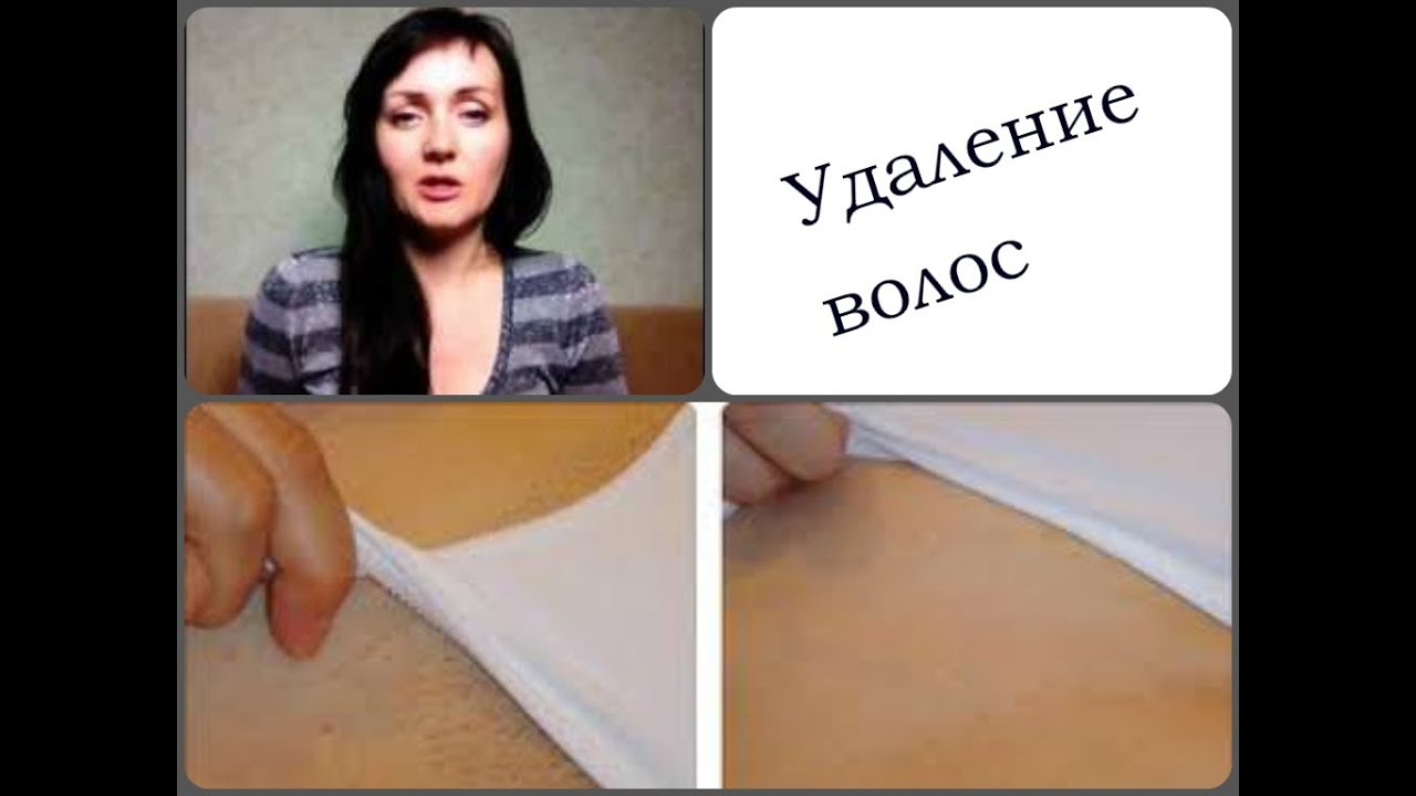 эпиляция зоны бикини противопоказания