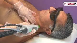 Erkekler lazer epilasyon işleminden önce ve sonra nelere dikkat etmelidir ?