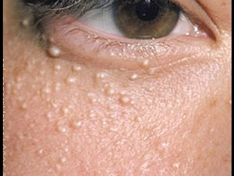 WHITE BUMPS UNDER YOUR EYES?