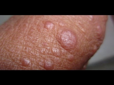 Fordyce spots – Causes, Symptoms, Treatment, Pictures