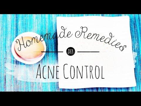 Skin Remedies   Acne Control