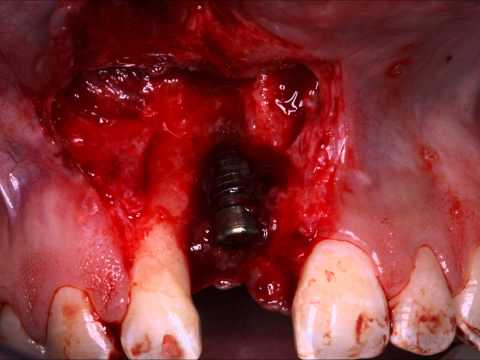 Complications Bone Gum Graft Dental implants